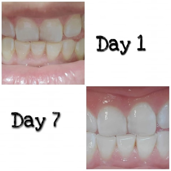 Other - Teeth whitening toothpaste